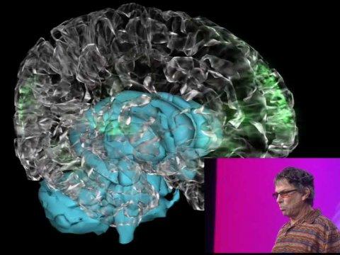 mickeys-brain-1
